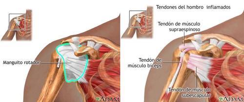 Síndrome del dolor subacromial: Qué es y cómo tratarlo